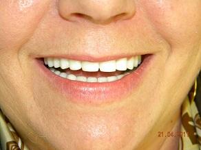 Implant Dentar Pr 234 T Plomba Dinti Pret